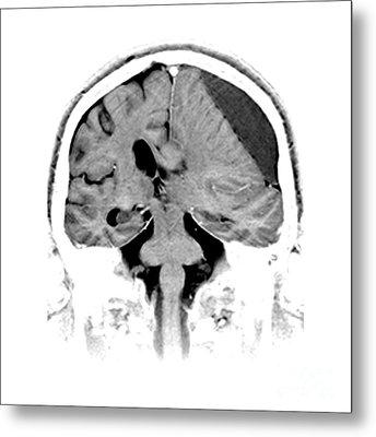 Subdural Hematoma Metal Print by Medical Body Scans