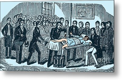 Surgery Without Anesthesia, Pre-1840s Metal Print by Science Source