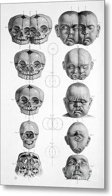 Surgical Anatomy 1856 Metal Print by Science Source