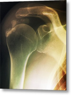 Tendinitis Of The Shoulder, X-ray Metal Print by Zephyr