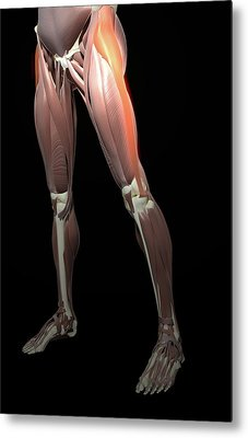 Thigh/lower Limb Abduction Metal Print by MedicalRF.com
