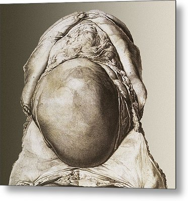 Uterus Of A Pregnant Woman Metal Print by Mehau Kulyk