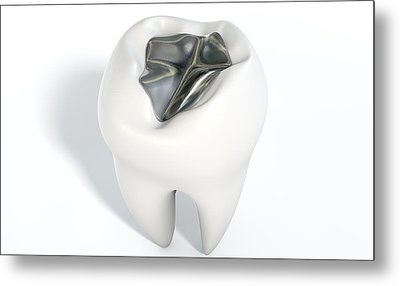 Tooth With Lead Filling Metal Print by Allan Swart