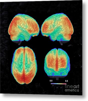 Bipolar Brain, 3d Mri Scan Metal Print by Science Source