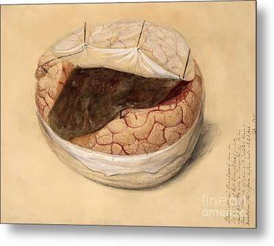 Blood Clot, Brain, Illustration 1869 Metal Print by Wellcome Images