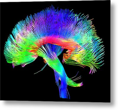 Brain Pathways Metal Print