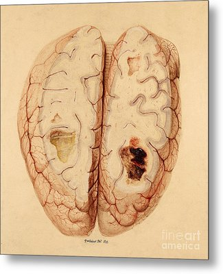 Extravasated Blood, Brain Metal Print by Wellcome Images