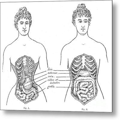 Medical Crimes Of The Corset, 1908 Metal Print
