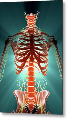 Nerves Metal Print by MedicalRF.com
