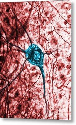 Neuron, Tem Metal Print by Science Source