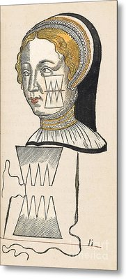 Pare Suture, 1500s Metal Print by Wellcome Images