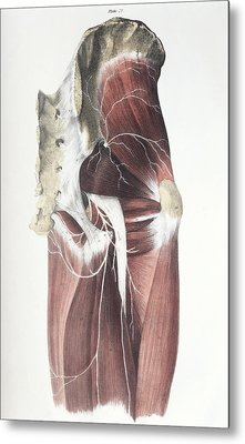 Pelvic Spinal Nerves Metal Print by Sheila Terry