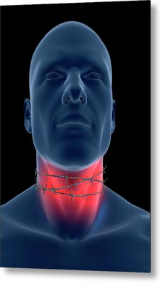 Sore Throat Metal Print by MedicalRF.com