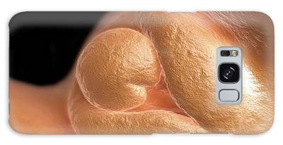 Prenatal Development Galaxy Cases