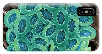 Planktonic Photographs iPhone Cases
