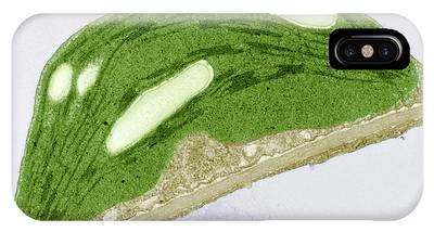 Electron Micrograph Phone Cases