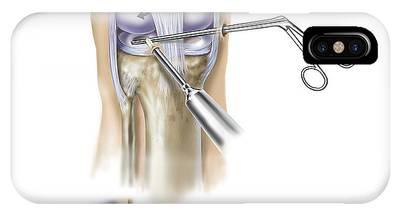 Endoscope Digital Art iPhone Cases