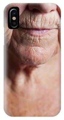 Gerontology Phone Cases