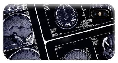 Diagnosis Phone Cases