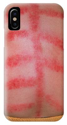 Traditional Chinese Medicine Phone Cases