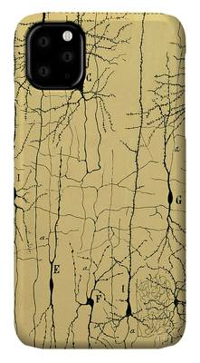 Histology Photographs iPhone Cases