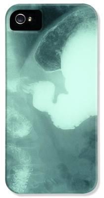 Volvulus iPhone 5 Cases