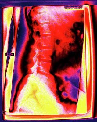 Backbone Poster