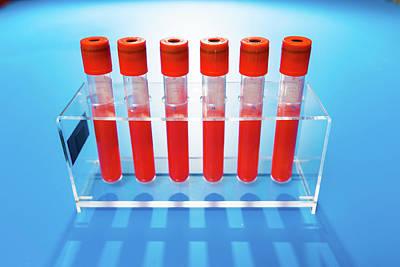 Blood Samples In Tubes Poster by Wladimir Bulgar