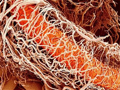 Blood Vessels Supplying A Testis Poster