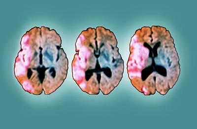 Brain In Ischemic Stroke Poster by Zephyr