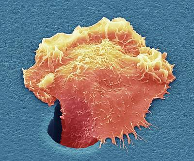 Cancer Cell Migrating Poster by Steve Gschmeissner