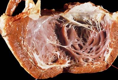 Cardiomyopathy Poster