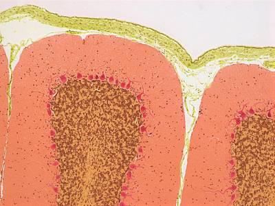 Cerebellum Poster