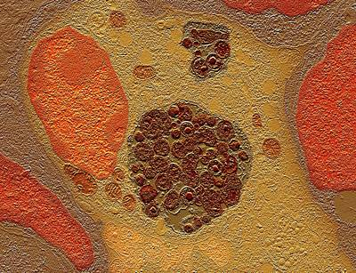 Chlamydia Bacteria In A Lung Cell Poster