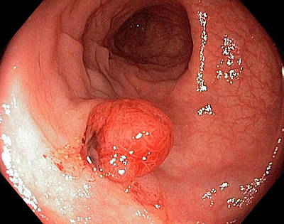 Colonic Polyp Poster by Gastrolab