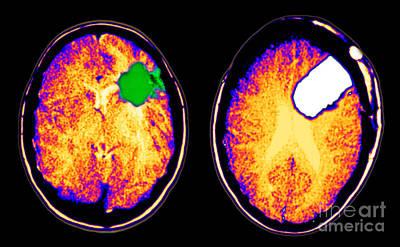 Ct Scan Of Brain Glioma And Tumor Poster by Scott Camazine