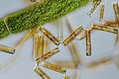 Diatoma Diatoms Poster by Gerd Guenther