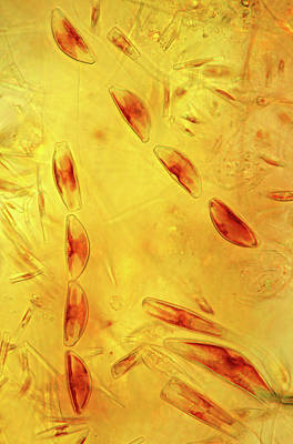 Diatoms Poster by Marek Mis