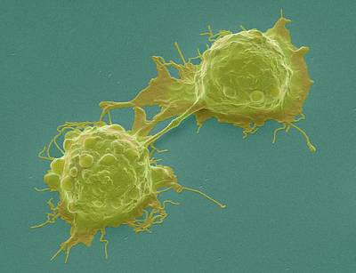 Dividing Colorectal Cancer Cells Poster by Steve Gschmeissner
