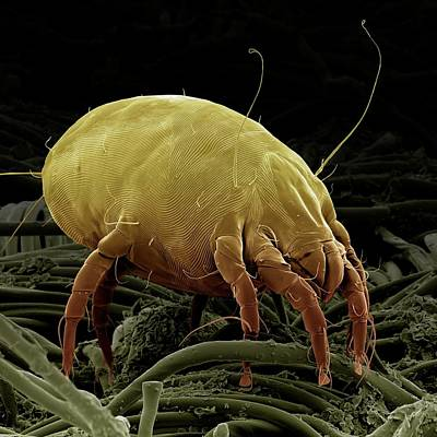 Dust Mite Poster by Clouds Hill Imaging Ltd