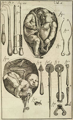Foetus Poster by British Library