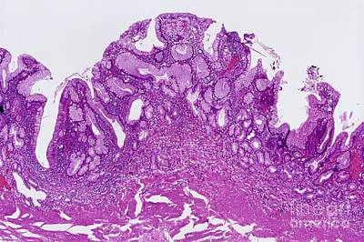 Gastritis, Light Micrograph Poster by Microscape