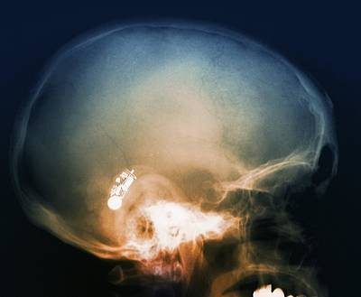 Hearing Aid, X-ray Poster by Science Photo Library