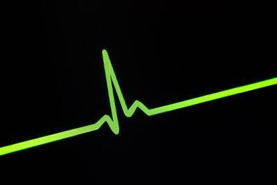Heartbeat Trace Poster by Daniel Sambraus