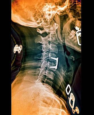 Herniated Spinal Disc After Treatment Poster
