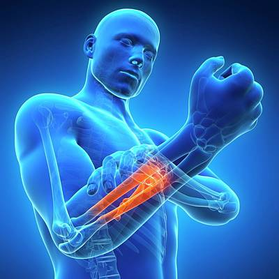 Human Arm Pain Poster by Sebastian Kaulitzki