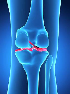 Human Knee Ligaments Poster by Sebastian Kaulitzki
