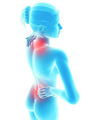 Human Neck And Back Pain Poster by Sebastian Kaulitzki
