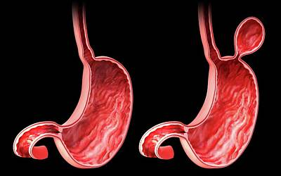 Human Stomach With Hernia Poster by Pixologicstudio