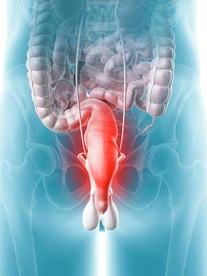 Inflamed Rectum Poster
